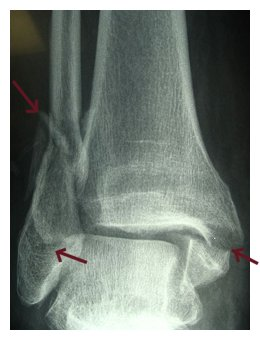 Ankle Fracture Surgery Repair Xray Picture from Bay Area Ankle Surgeon and San Francisco Podiatry