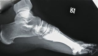 San Francisco Podiatrist shares x-ray of a heel spur in a patient with heel pain