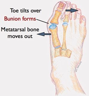 How bunions develop by San Francisco Foot Surgeon.001