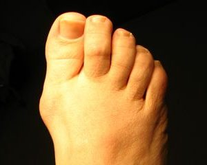 Bunion picture from San Francisco's Podiatrist