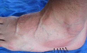 San Francisco podiatrist image of bruising on the foot which might indicate a stress fracture