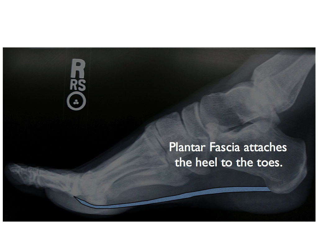 Heel Xray with plantar fascia illustrated by San Francisco Podiatrist