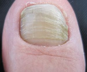 Runner toenail that looks like toenail fungus, but is actually just thick and discolored from repeatedly hitting the inside of the running shoe from San Francisco Podiatrist