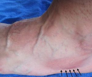 San Francisco Runner with bruised foot suggesting stress fracture