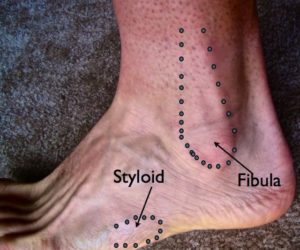 Ankle sprain diagnosis picture San Francisco Podiatrist