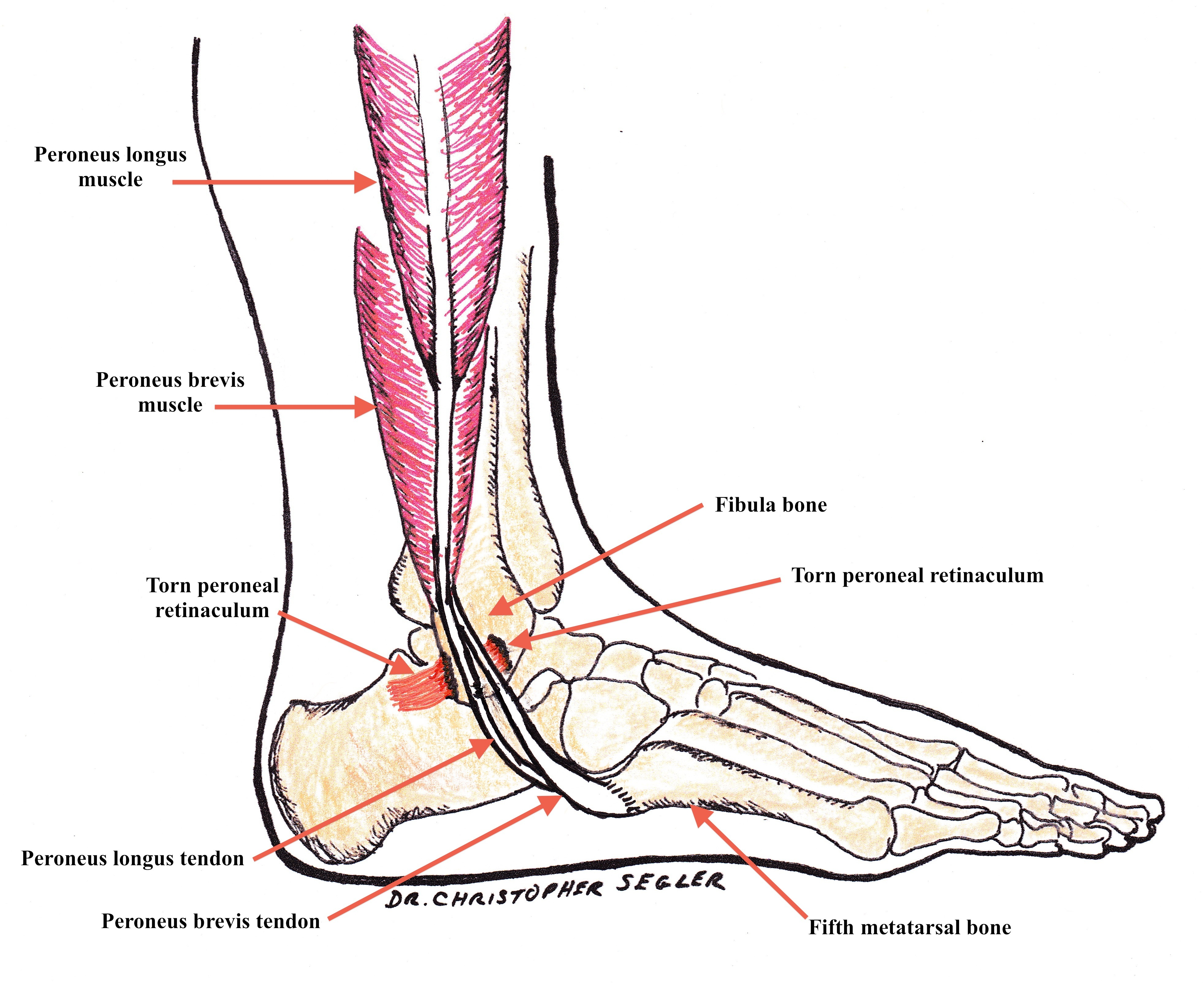 Peroneal Tendon Subluxation | DOC