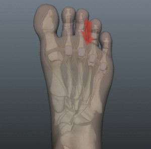 Neuroma Pain Location