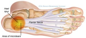 runners with plantar fasciitis