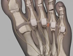 5 biggest mistakes runners make when they think they have a neuroma