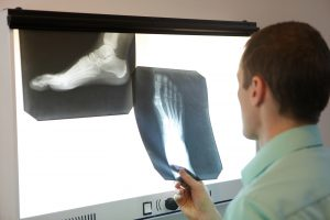 Myths About X-rays And Running Injuries