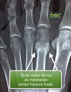 preview-full-bone-callus-formation-as-a-metatarsal-stress-fracture-heals