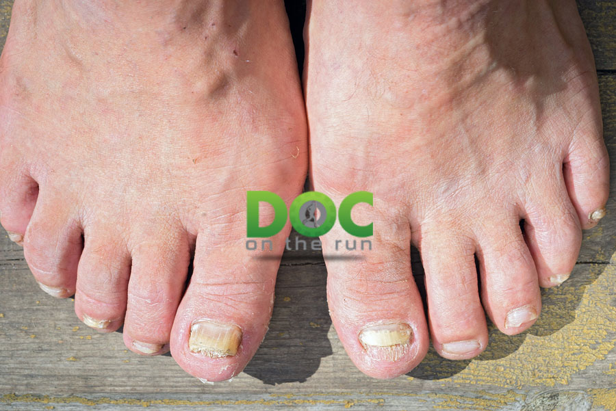 Top 5 Mistakes Runners Make with Their Toenails | DOC