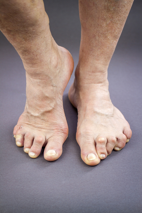 Fat Pad Atrophy In Runners Doc