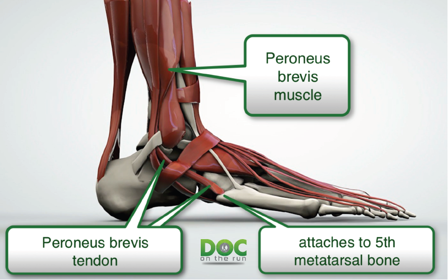 Doc On The Run Podcast: Peroneus Brevis Tendinitis in Runners | DOC