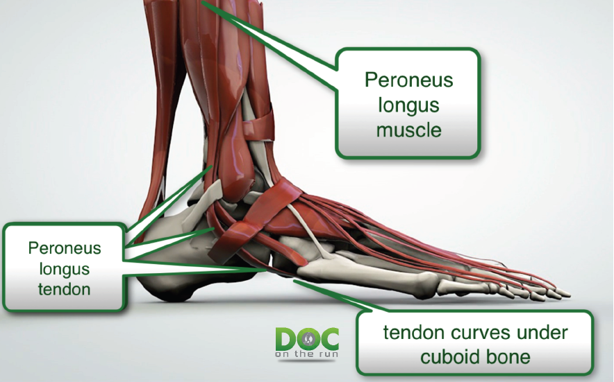 Doc On The Run Podcast: Peroneus Longus Tendionitis in ...