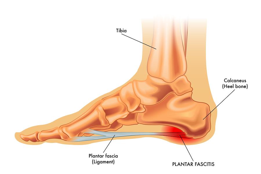 Plantar Fascia Surgery Question