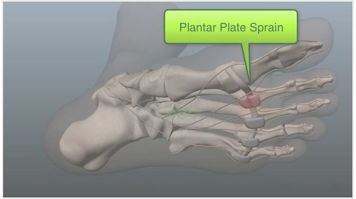 How can a runner heal a plantar plate sprain doc the inflammation and you get very little improvement then your doctor would probably assume you have a more significant tear in the plantar plate publicscrutiny Image collections