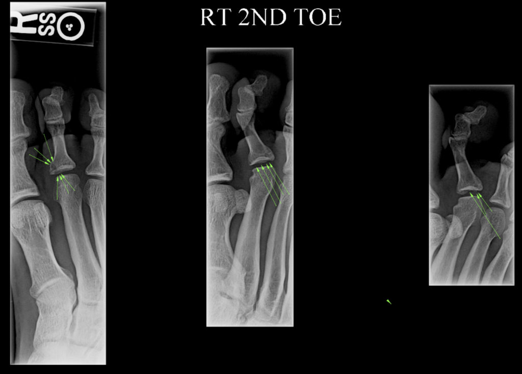138 Fracture in the ball of the foot  Getting back to