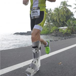 243 Do I Need A Fracture Boot For A Tibial Stress Fracture Doc
